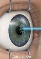 Лазерная коррекция дальнозоркости зрения